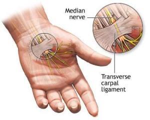 Cranio Sacraal en zenuwpijn